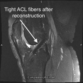 Intact ACL after reconstruction