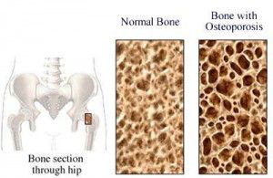 osteoporosis awareness and prevention